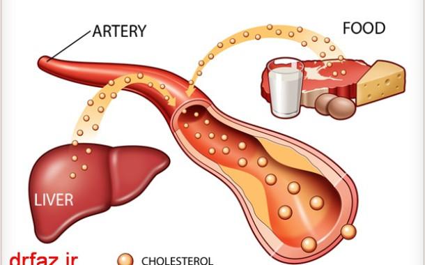 کلسترول خون