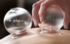 بادکش درمانی حجامت گرم خشک حجامت سرد خشک