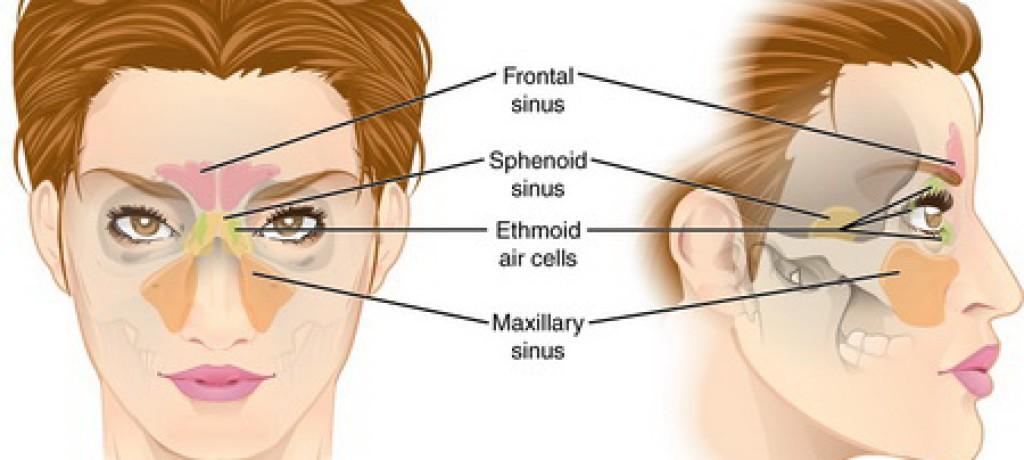 بادکش گونه درمان فلج صورت پولیپ سینوزیت