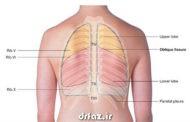 بادکش ریه درمان شیمیایی آسم سرفه تنگی نفس