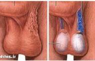 واریکوسل درمان طب سنتی گیاهی زالو درمانی