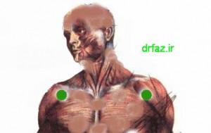 حجامت در ناحیه سه گوشه شانه حجامت اندام فوقانی