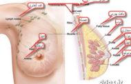 بادکش پستان بادکش درمانی حجامت خشک