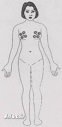 بادکش پستان